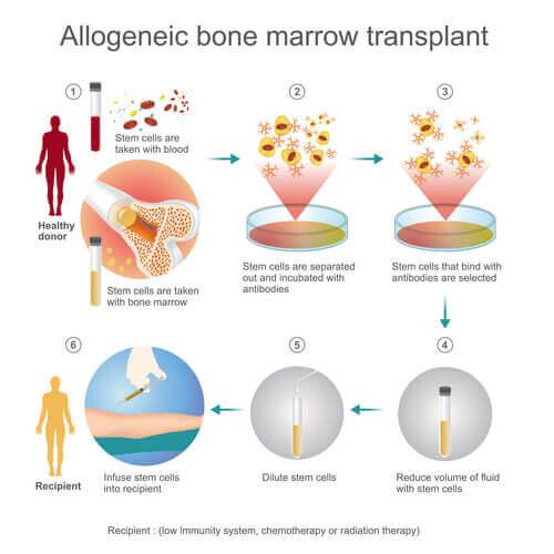 Этапы подготовки для пересадки костного мозга