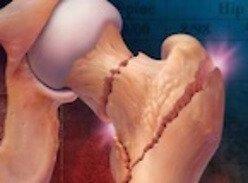 Израильскими учеными разработан абсолютно новый способ терапии остеопороза