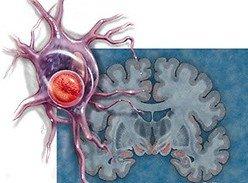 Нейродегеративные заболевания и их причины