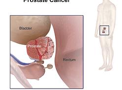 Хирургия простаты: диагноз рака – не приговор