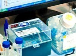Боковой амиотрофический склероз и стволовые клетки