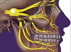 Преимущественный метод лечения невралгии тройничного нерва