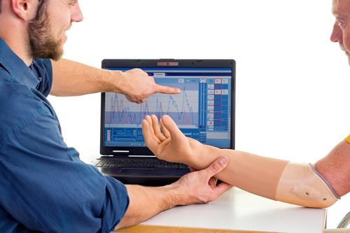 Ученые нашли способ оживить протез руки