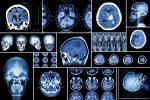 Роль тау-белка при болезни Альцгеймера