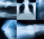 Метод регенерации костей усовершенствуют